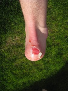 walking boot blister